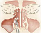 Cirugía endoscópica teoría